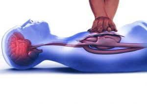 3 Indications to perform CPR and its techniques you must know